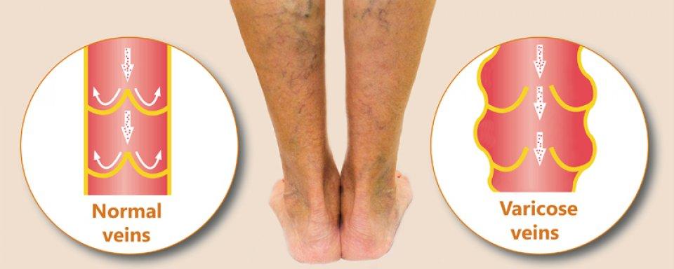 a lábakon lévő visszerek enyhítik a fájdalmat