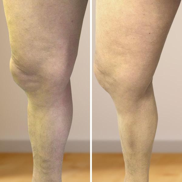 a visszér lézeres kezelése a lábakon videó