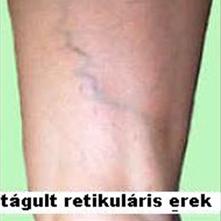 Visszeresség és lábszárfekély (Fekély-szkleroterápia)