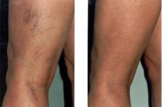 Zokni varicositás elleni csoda zokni