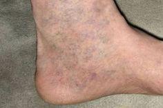 dobás és visszér hogyan befolyásolja az egészséget a lábak visszér