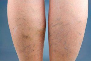 pigmentáció a lábakon, visszér fotó