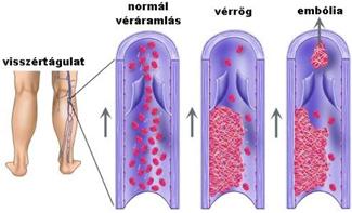 Varikozusok lézeres kezelése cheboksary árakon