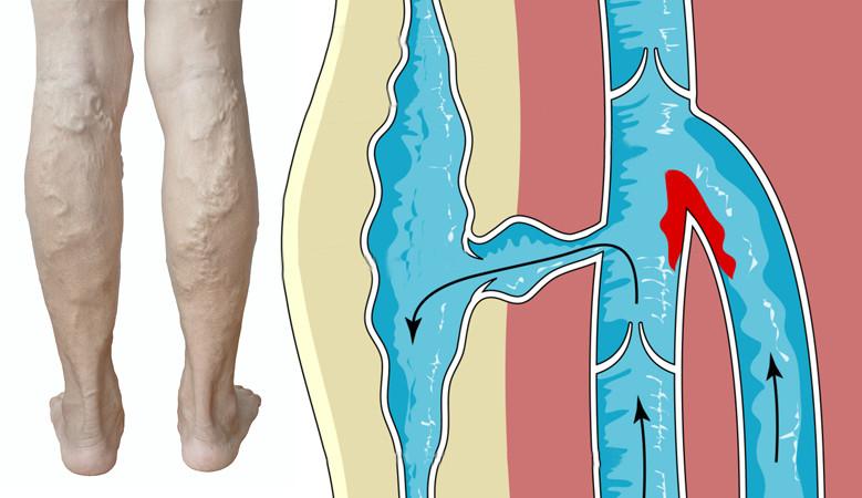 a bal láb megdagad a visszérben