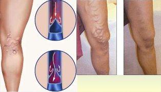 Visszérbetegség, megelőzés tornával - Súlypont Ízületklinika