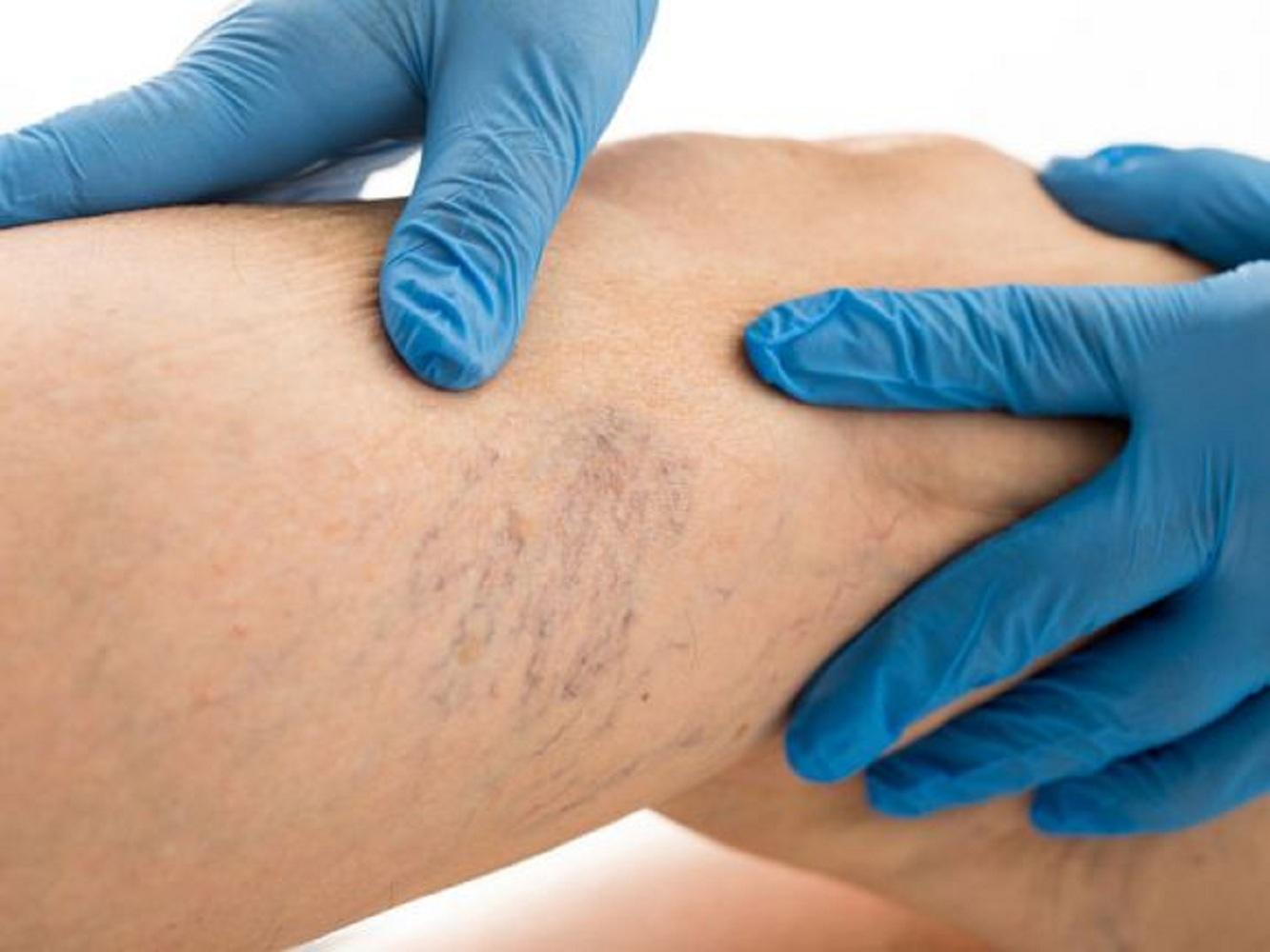 orvos hentes visszér kenőcs a visszér megelőzésére és kezelésére