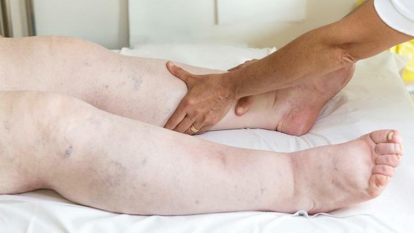 a lábak varikózisai csökkenthetők