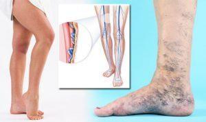 amelyben a visszér kezelésére szolgáló üdülőhelyek bőrgyulladás kezelése visszeres