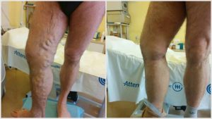 műtét utáni következmények visszér)