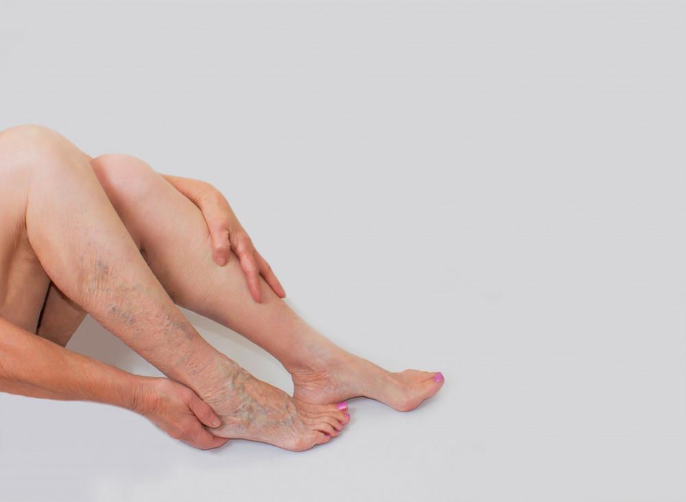 hagyományos módszerek a láb visszér kezelésére