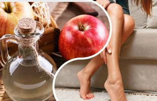 alma visszér kezelésére
