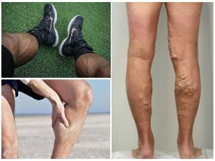 fizikai aktivitás a visszeres lábakon