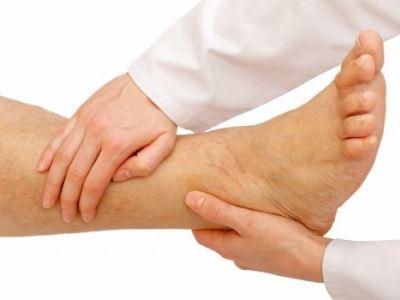 bőrgyulladás kezelése visszeres