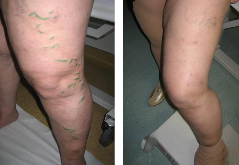 hogyan lehet eltávolítani a visszerek a lábak terhesség alatt