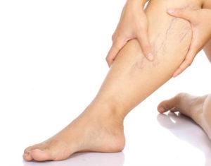 visszér kezelése szerecsendió tinktúrával visszerek terhesség alatt a lábakon tünetek