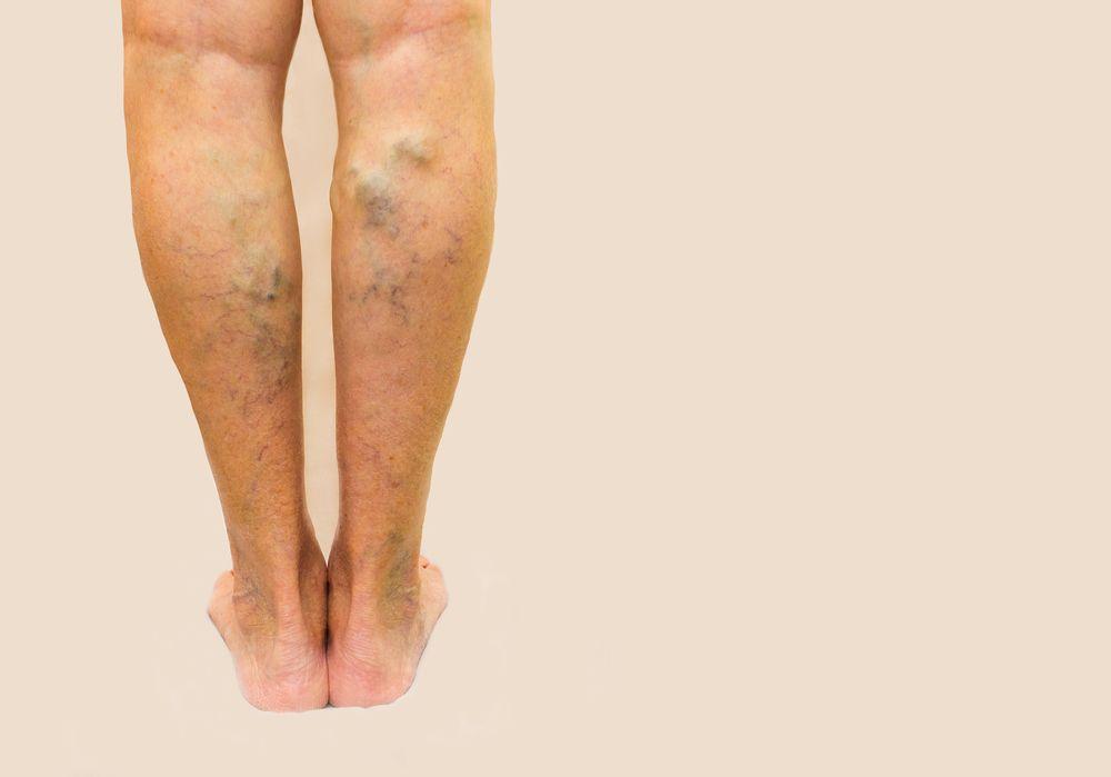 Cukorbeteg láb - rettegett szövődmények - Dr. Zátrok Zsolt blog