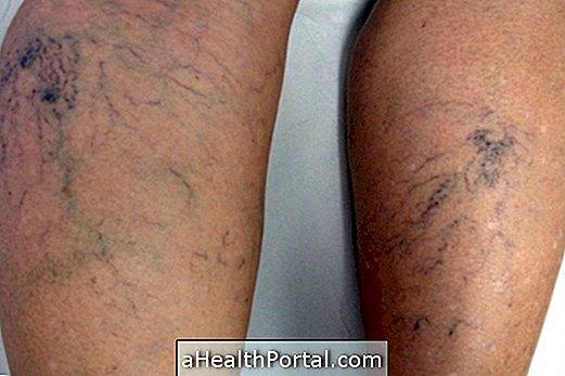 a varikózis eltávolításának módjai a lábakon
