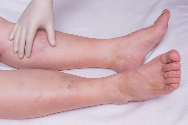 a bőr viszketése az alsó végtagok varikózisával a visszeres csizma nem segített