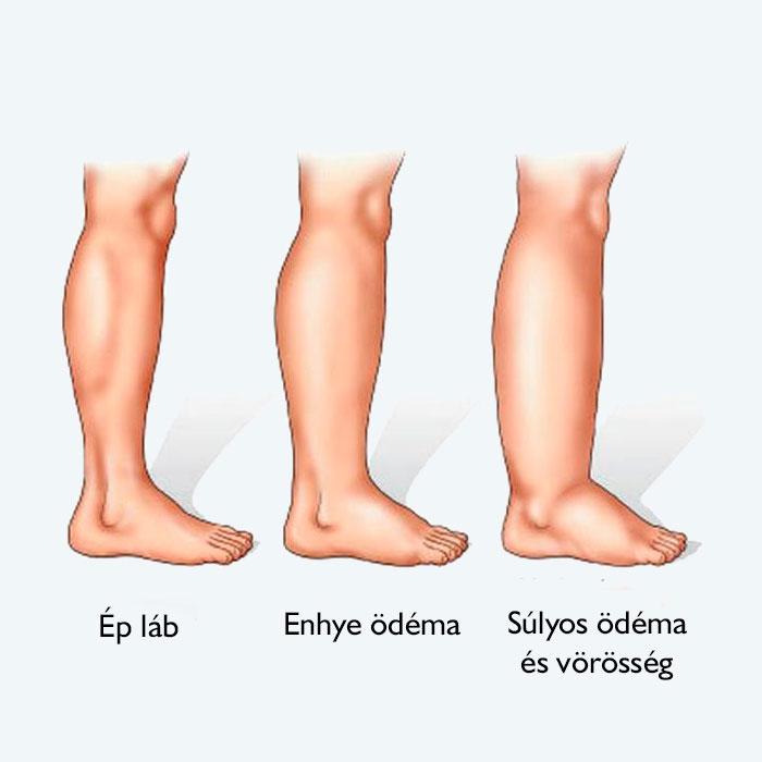 Gerinccsatorna-szűkület kezelése korszerű endoszkópos műtéttel