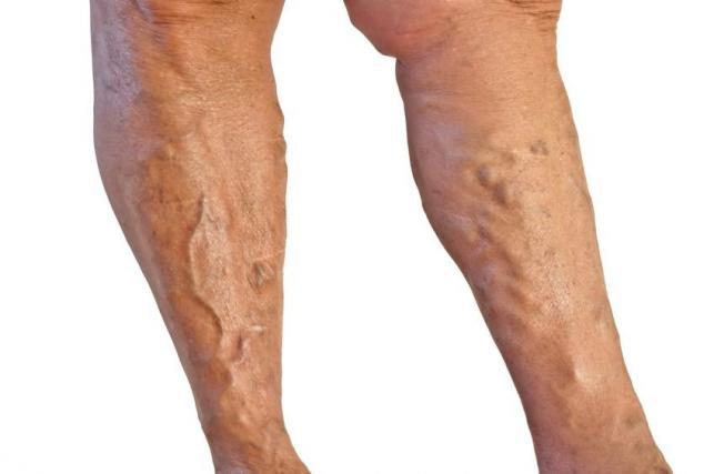 a lapos lábtól visszér
