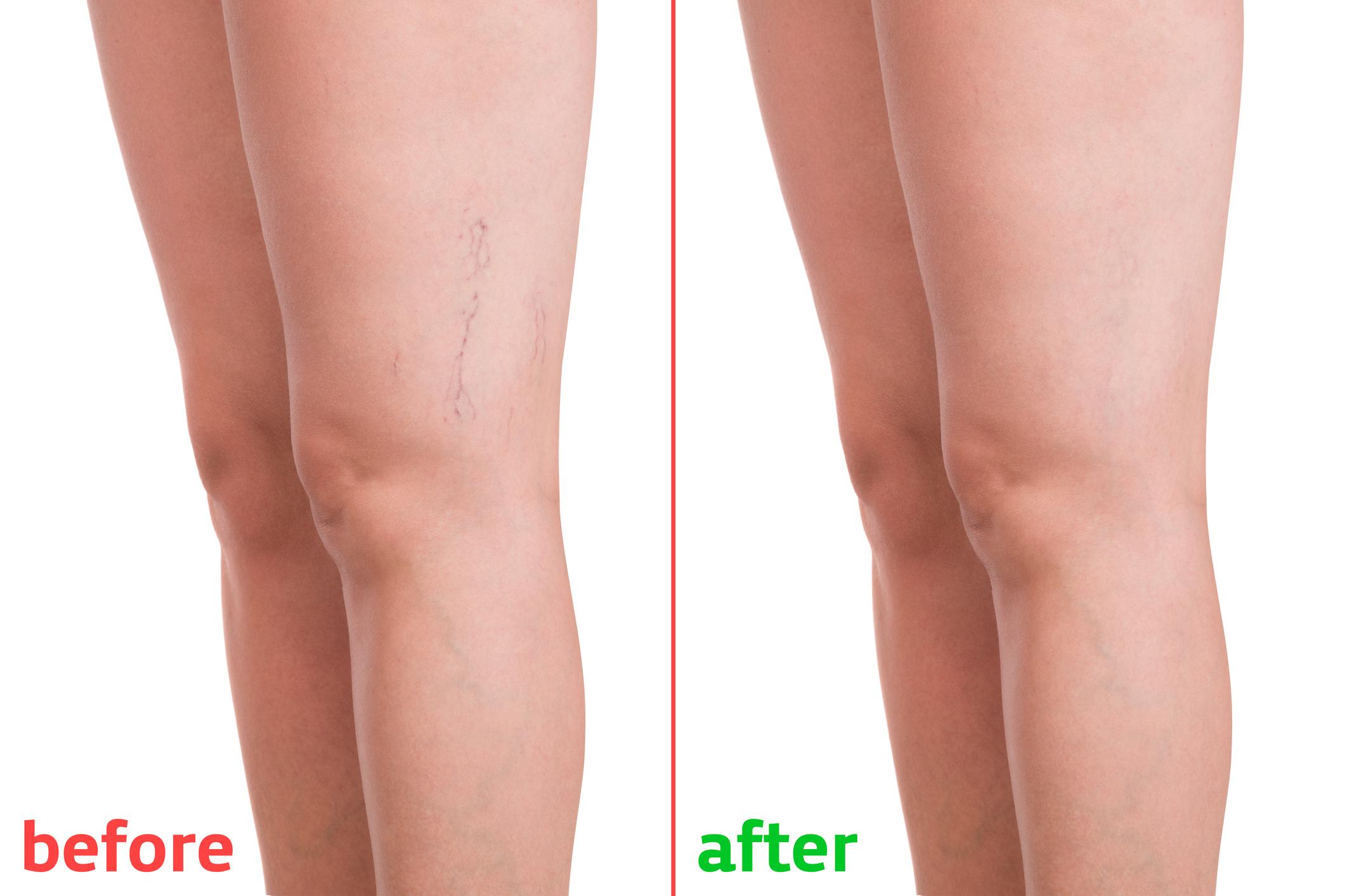 a lábak a visszerek miatt fájhatnak