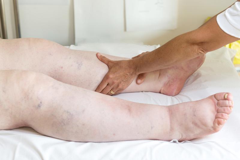 a lábakon lévő visszerek miatt meghal