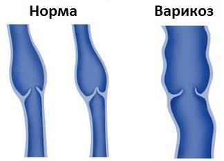 A retikuláris varikózusok kezelésének és megelőzésének módszerei - Bőrgyulladás September