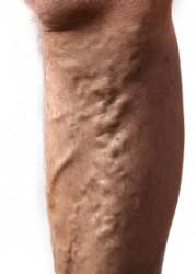 a visszér és a tromboflebitis jelei)