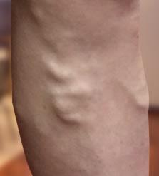 visszérboka fáj orvosság a visszér ellen a kezeken