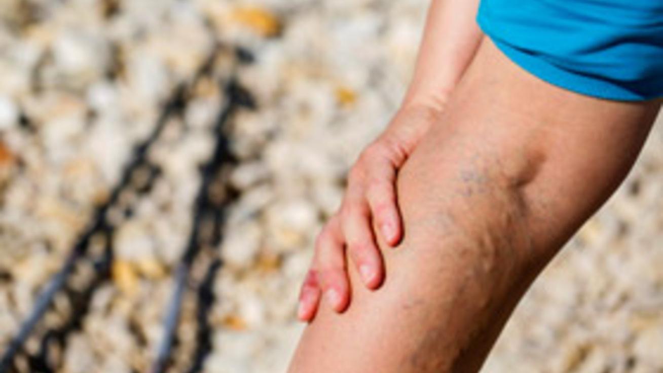 hogyan lehet kezelni a visszéreket népi gyógymóddal visszér láb kezelés
