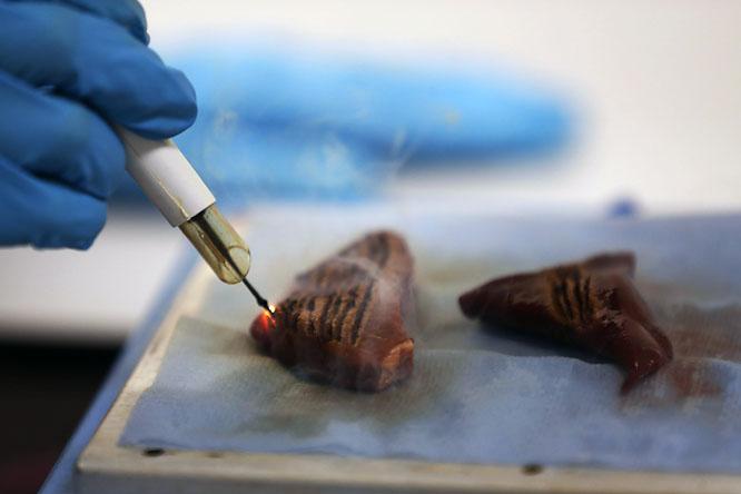 A varikózus vénák kezelése Neumyvakin módszerével: sajtkötések visszeres vénák ellen