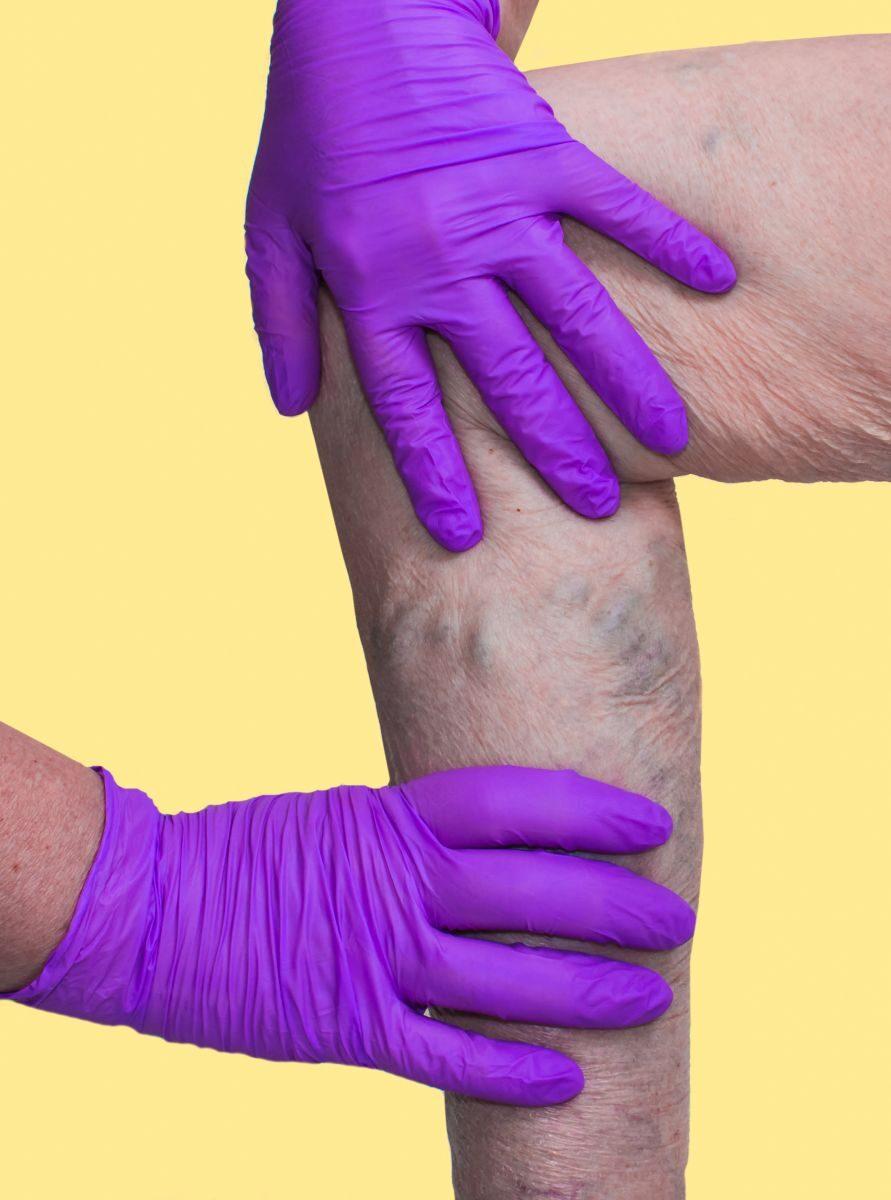 ahol a lábakon visszérgyulladást kezelnek