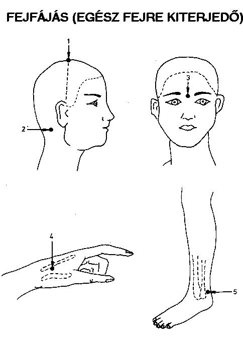 akupunktúrás pontok visszér visszeres viszketés hogyan kell kezelni