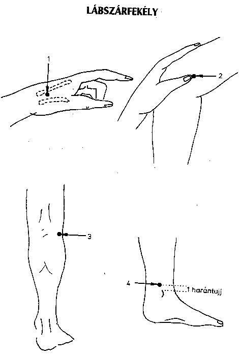 akupunktúrás pontok visszér szúnyogcsípés visszeres