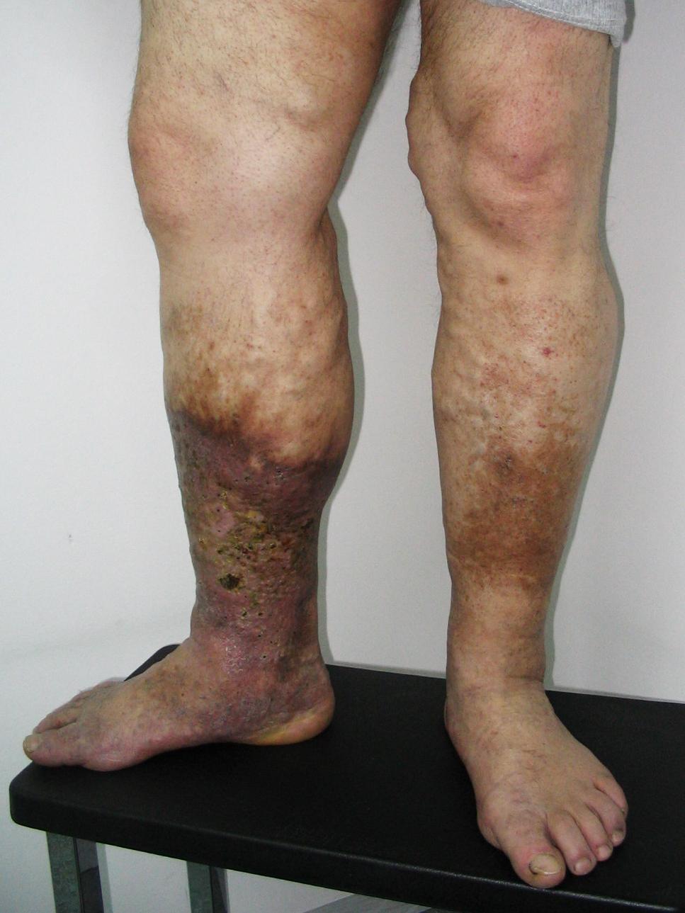az alsó lábszáron visszér