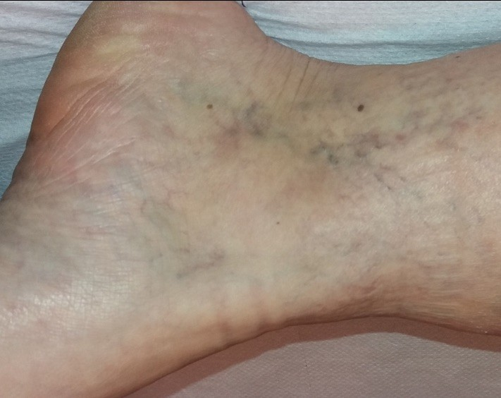 visszér a lábakon operációs ár visszér érsebész