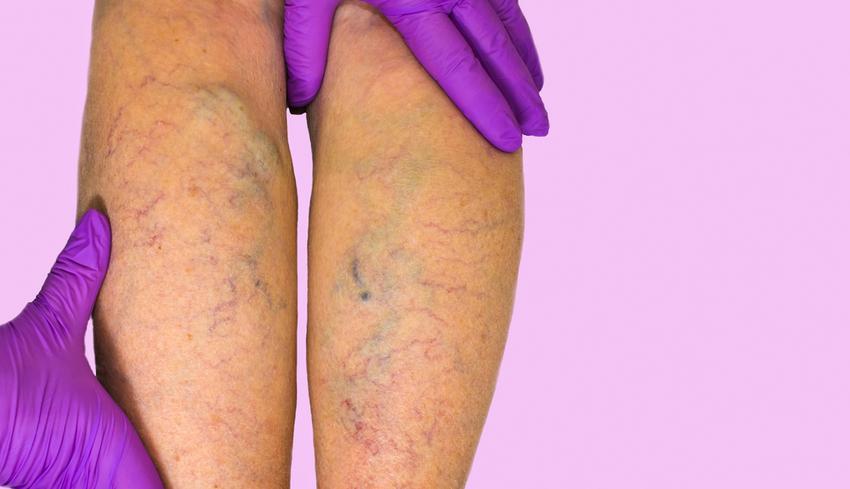 Vénafalgyulladás (tromboflebitisz) - EgészségKalauz