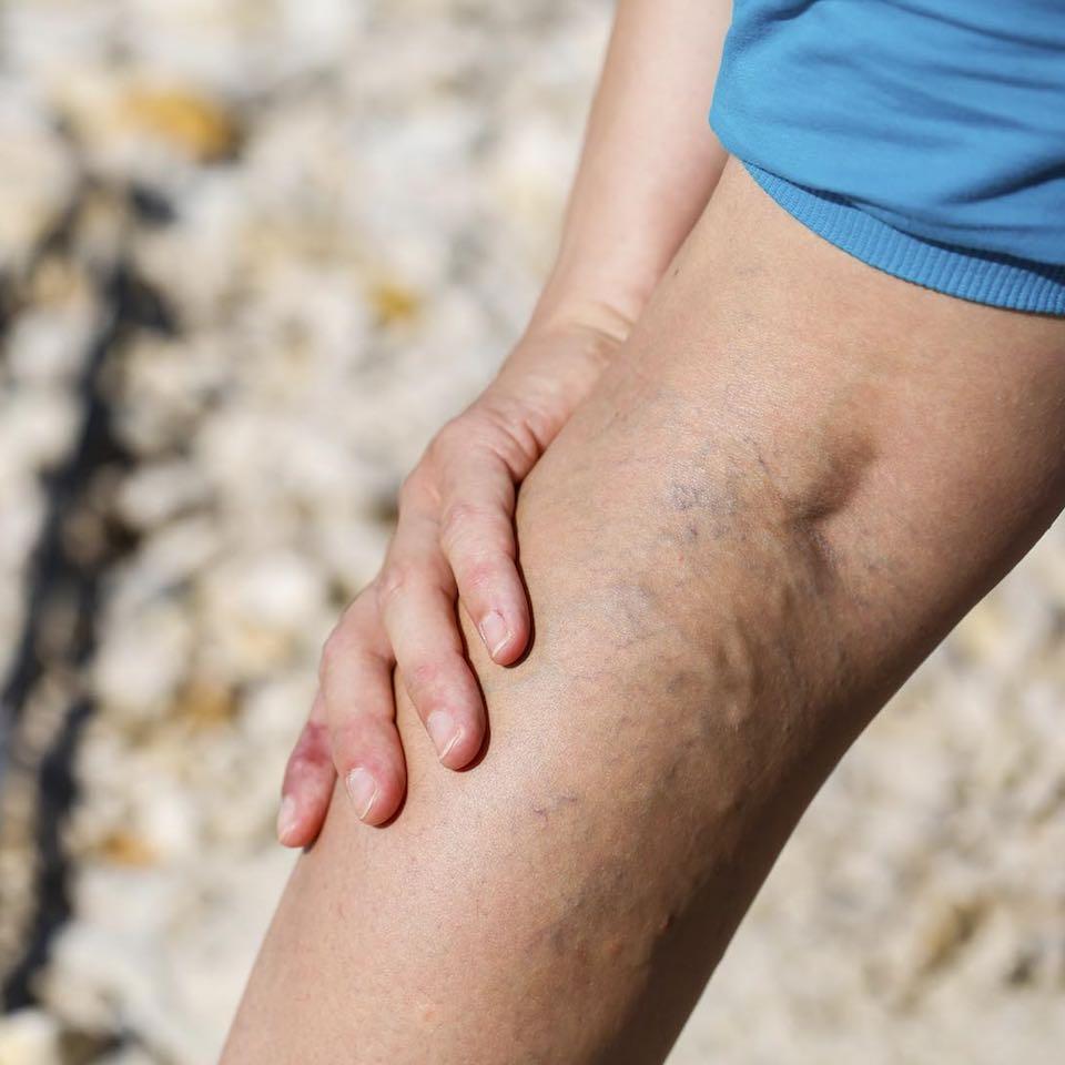 a visszér lényege a lábak varikózisának kezelése ecettel