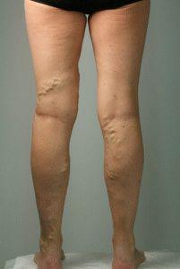 cyanosis a láb visszeres