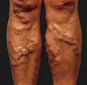 a visszér káros a lábon