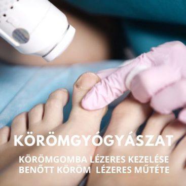 Köldökzsinór elvágása - mikor - Gyerek | Femina