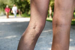 pigmentáció a lábakon, visszér fotó)