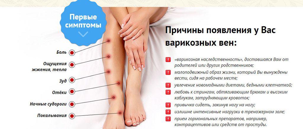 A varikózis megbetegedései - segítség a betegség kezelésében