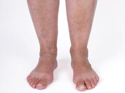 a lábujjak fájdalma visszeres)