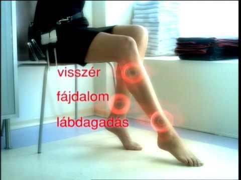hirudoterápia video visszér