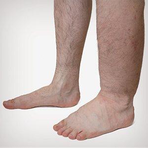 a lábak visszér tablettái