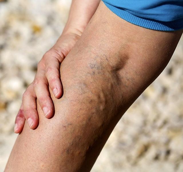 visszér viszkető lábak mit kell tenni guasha visszér
