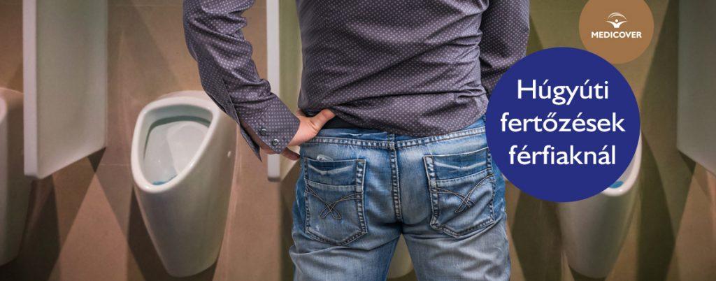 férfiaknál a kismedence tüneteinek visszér