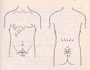 A varikózus vénák kezelése: jelzések, hogyan történik az eljárás - Diszplázia