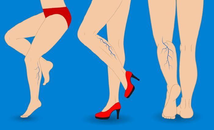 visszér a lapos lábaktól)